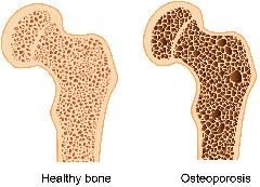 Weight Training for Bone Density and Longevity